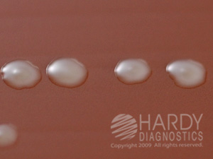 Chocolate Agar - GC Base with Hemoglobin and Supplements ...