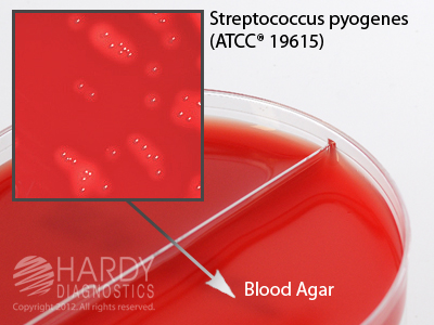 Base 10 Percent Sheep Blood in Tryptic Soy Agar Order by the Package of 10 Blood Agar by Hardy Diagnostics TSA 15x100mm Plate