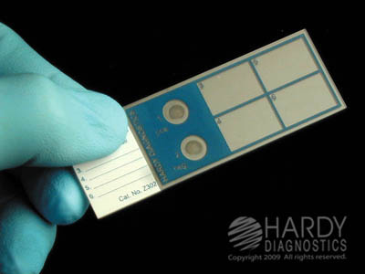 Economy 72 per Box 3x1 Inches x 1mm by Hardy Diagnostics Frosted ProSlide Microscope Slides